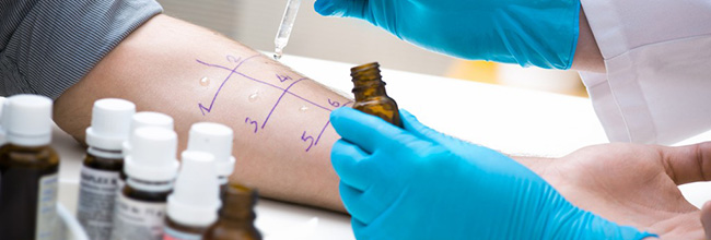 Allergy Testing Services