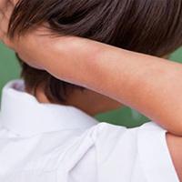 Skin Allergies in Camarillo