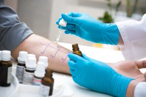 Allergy Skin Testing May Be Able to Tell You More Than You Think