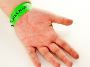 What to Do if You Have Developed a Latex Allergy