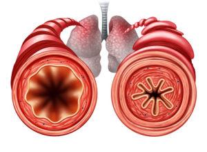 The Asthma Basics