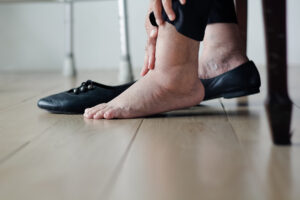 You Don't Have to Simply Accept Your Swelling Disorder: Learn What Can Be Done